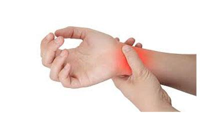 Illustration d'un poignet qui semble douloureux, début de canal carpien, TMS fréquente du poignet